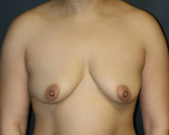 Breast Augmentation with Lift - Before & After - Dr. Placik