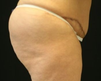 Liposuction Chicago