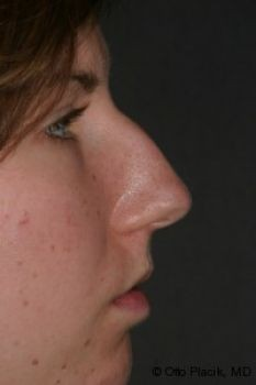 Rhinoplasty - Before & After - Dr. Placik