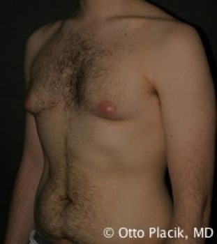 Male Liposuction - Before & After - Dr. Placik