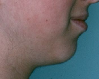 Chin Surgery - Before & After - Dr. Placik