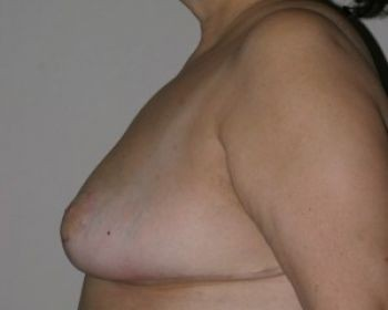 Breast Reduction Chicago