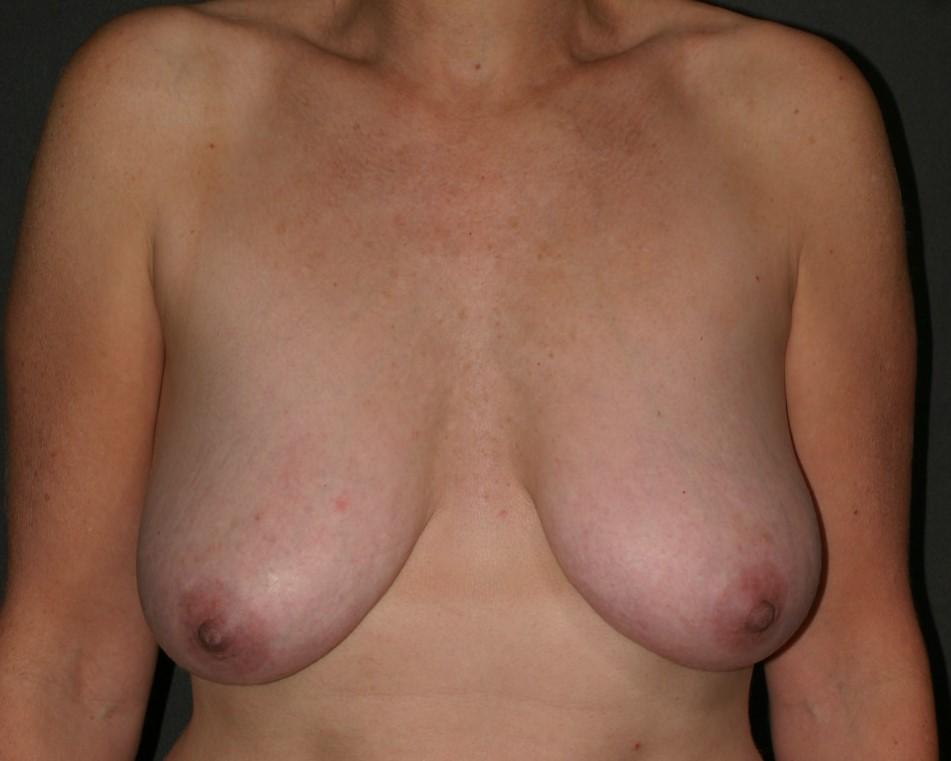 Breast Lift - Before & After - Dr. Placik