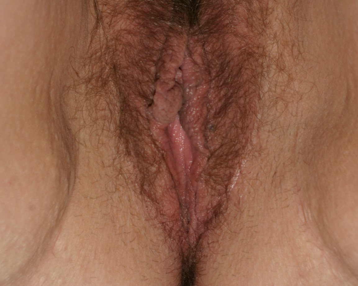 Vaginoplasty - Before & After - Dr. Placik