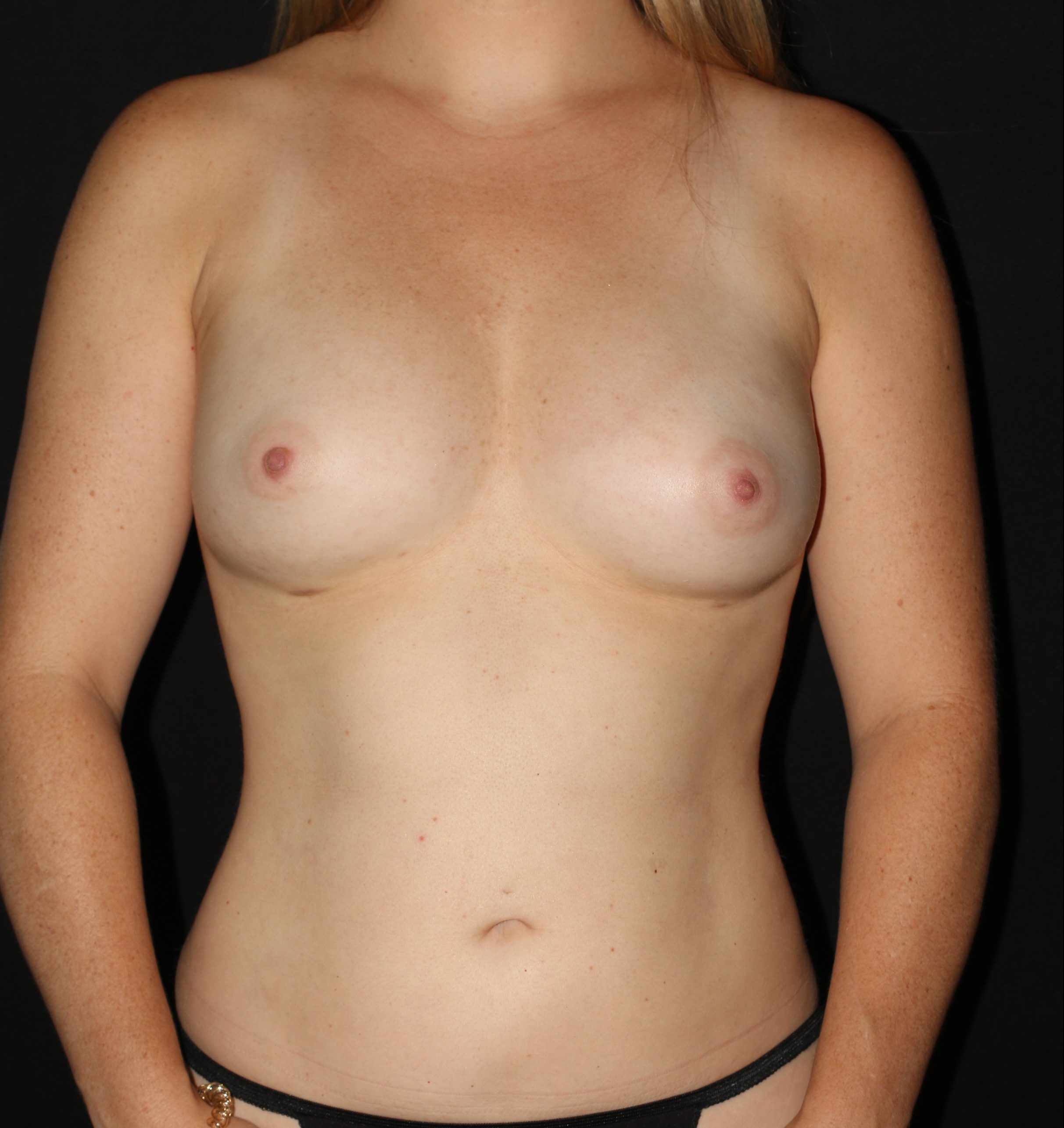 Breast Augmentation with Fat Grafting - Before & After - Dr. Placik