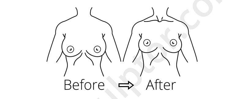Common Approaches to Breast Lift Surgery
